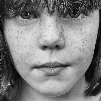 Frecklehead Goes Global In Apple iPhone Campaign